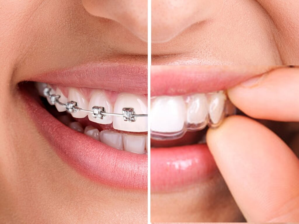 comparación ortodoncia