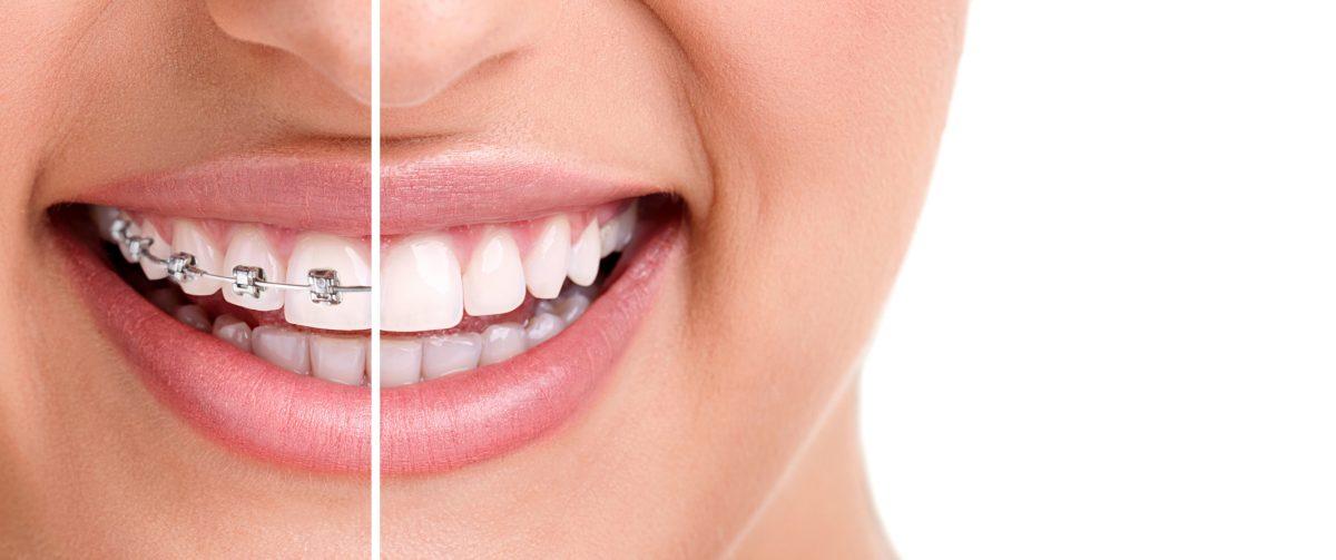 Tipos de ortodoncias: cuál elegir