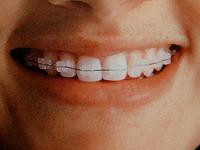 Ortodoncias cerámicas