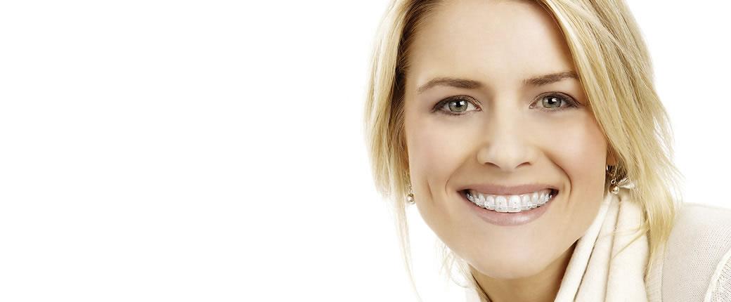 ¿Qué es la ortodoncia cerámica?