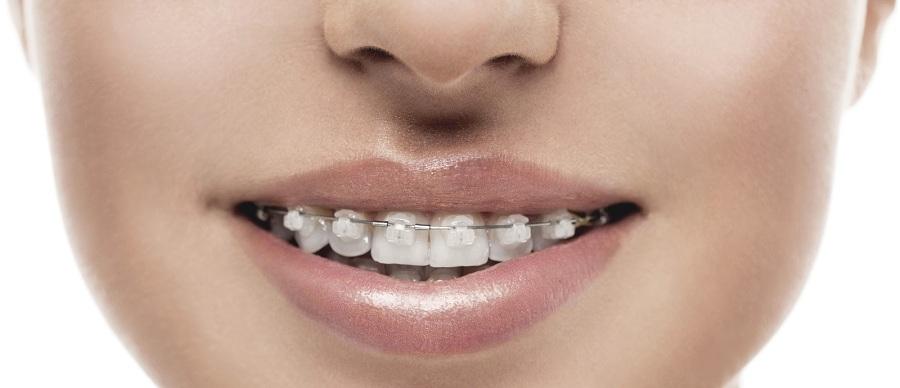 Ortodoncias transparentes: tipos y ventajas