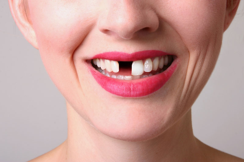 ¿Por qué falla un implante dental?