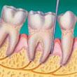 encias-advancedperiodontis