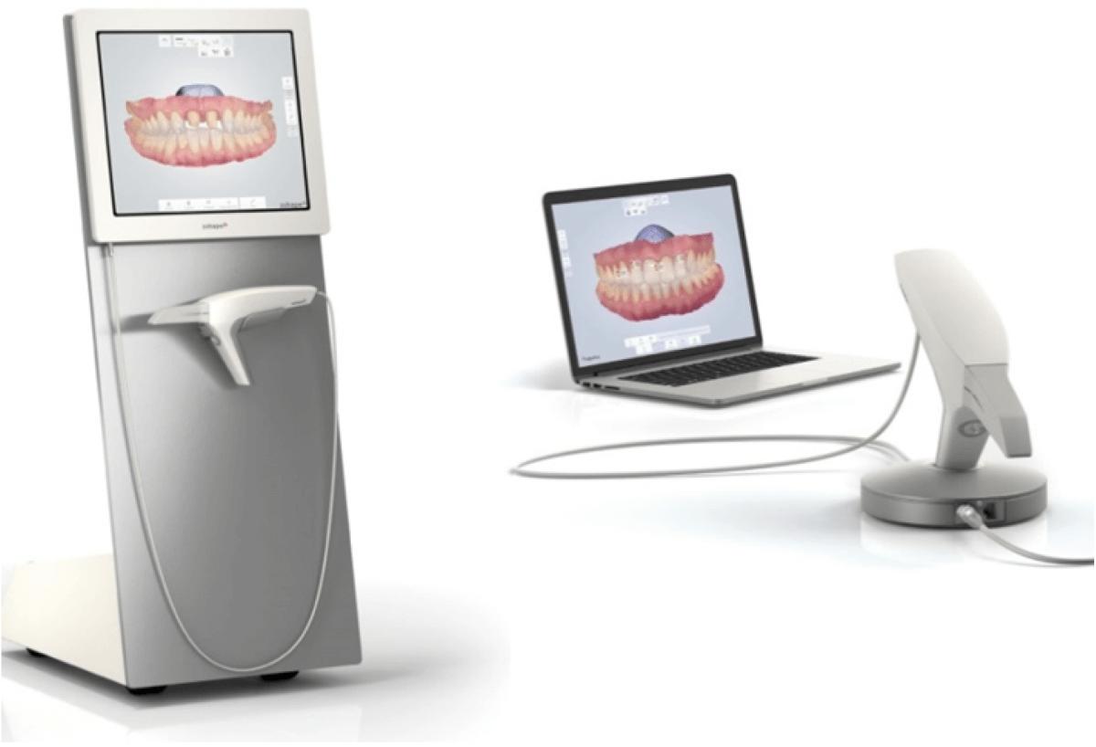 Escáner intraoral: en qué consiste