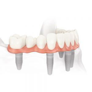 all-on-four-dental-implants