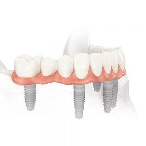 all-on-four-dental-implants
