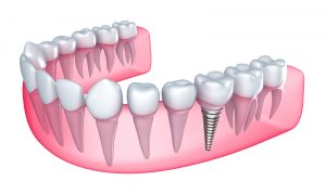 dental-implant-21
