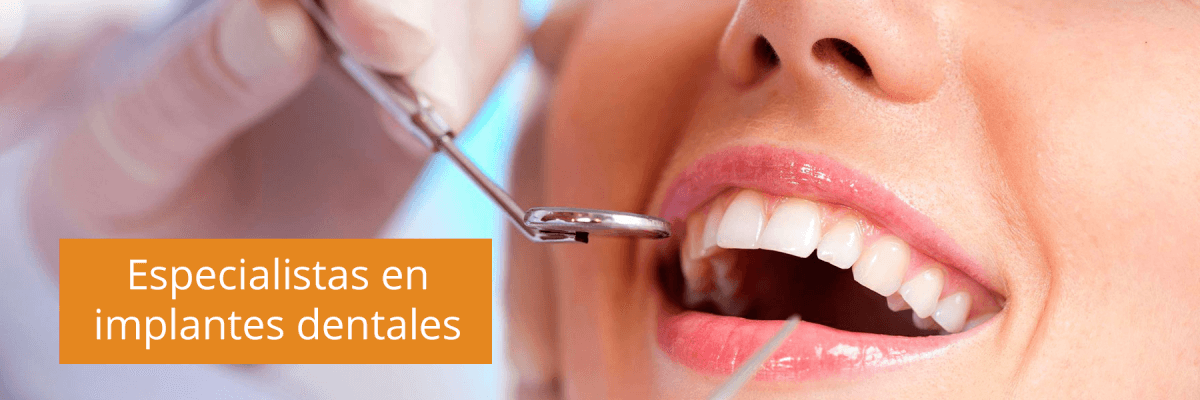 Implantes dentales: beneficios