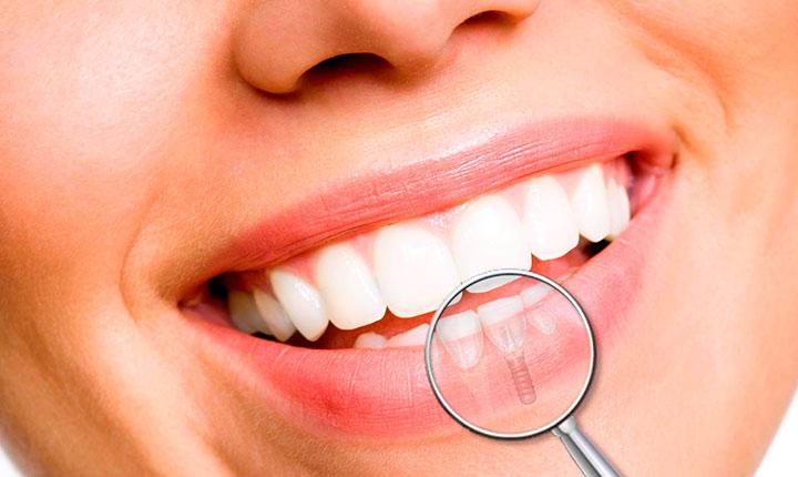 Cuidado de los Implantes dentales
