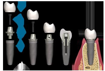 Implantes dentales que se rompen