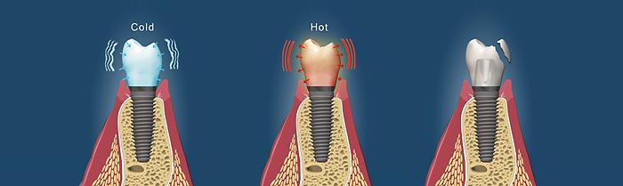 dental-implant-care2