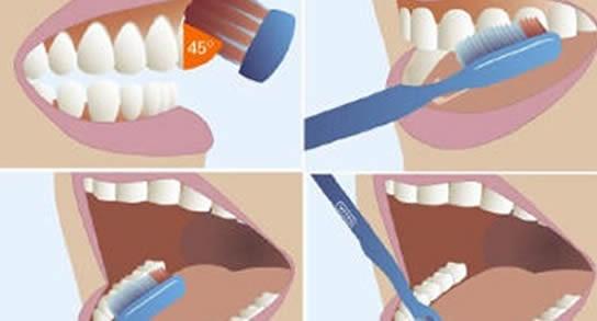 Cómo cepillar los dientes