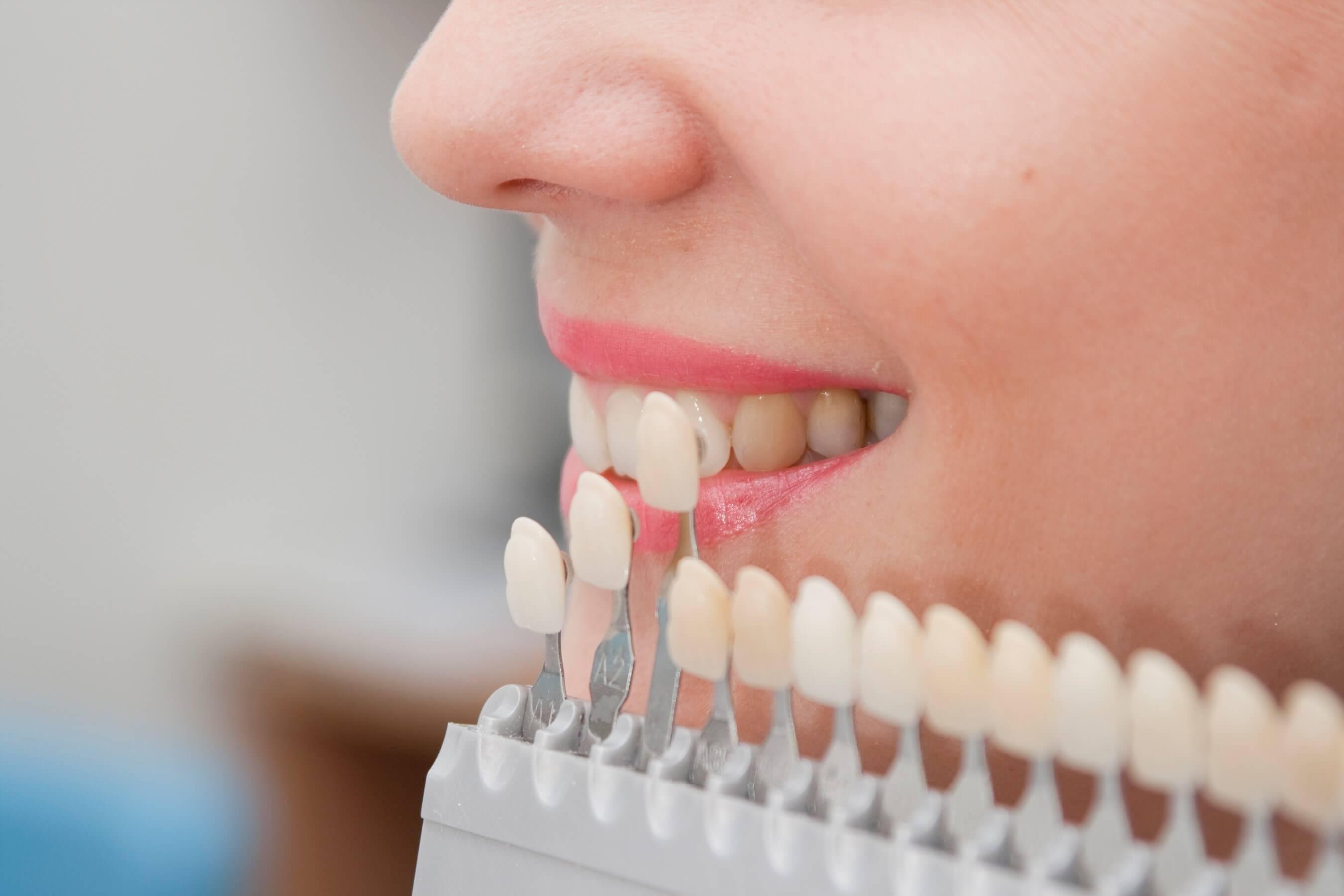 elegir implante