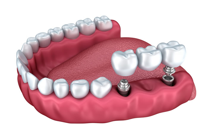 Implantes dentales para tu salud bucal