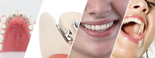 Ortodoncia lingual: en qué consiste