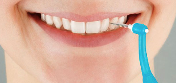 ortodoncia lingual limpieza
