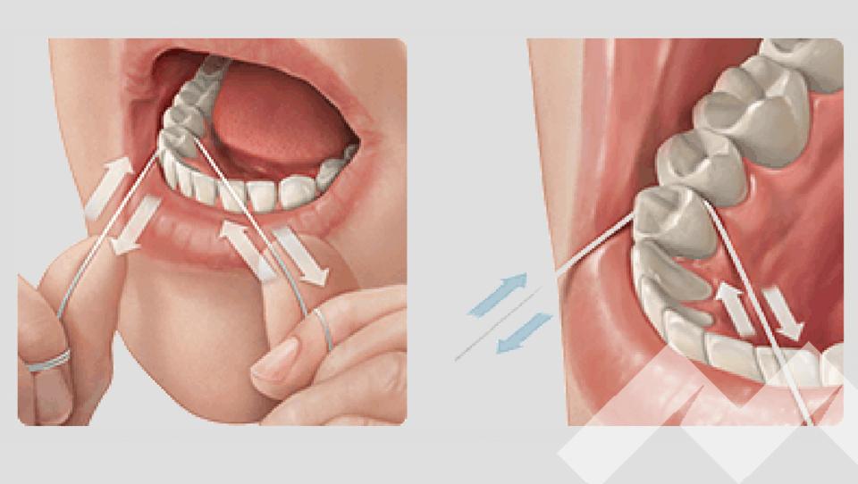 ortodoncia lingual limpieza bucal