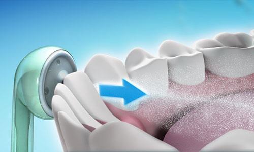 Tips de limpieza de ortodoncia lingual