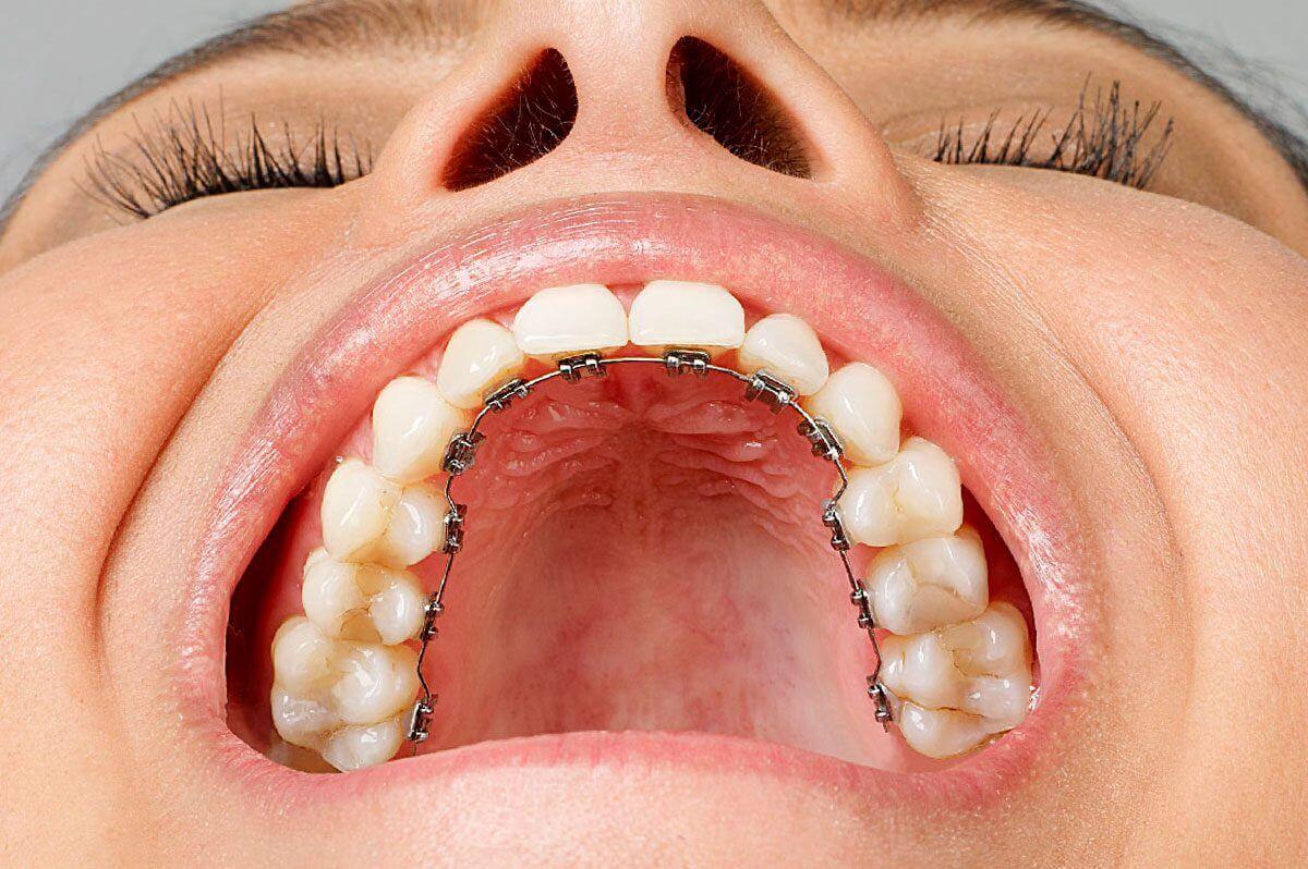 Ortodoncia lingual: resolvemos algunas preguntas frecuentes