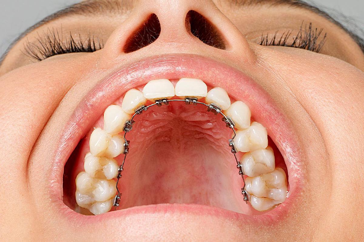 ortodoncia lingual mujer