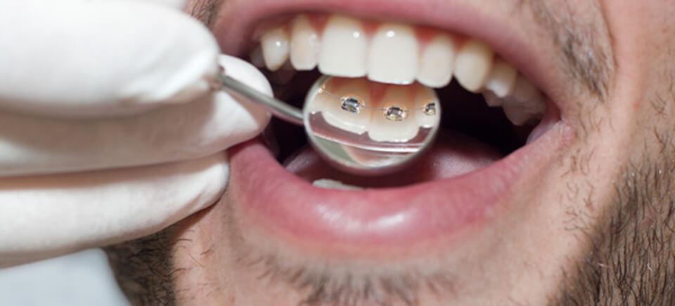 ortodoncia lingual hombre