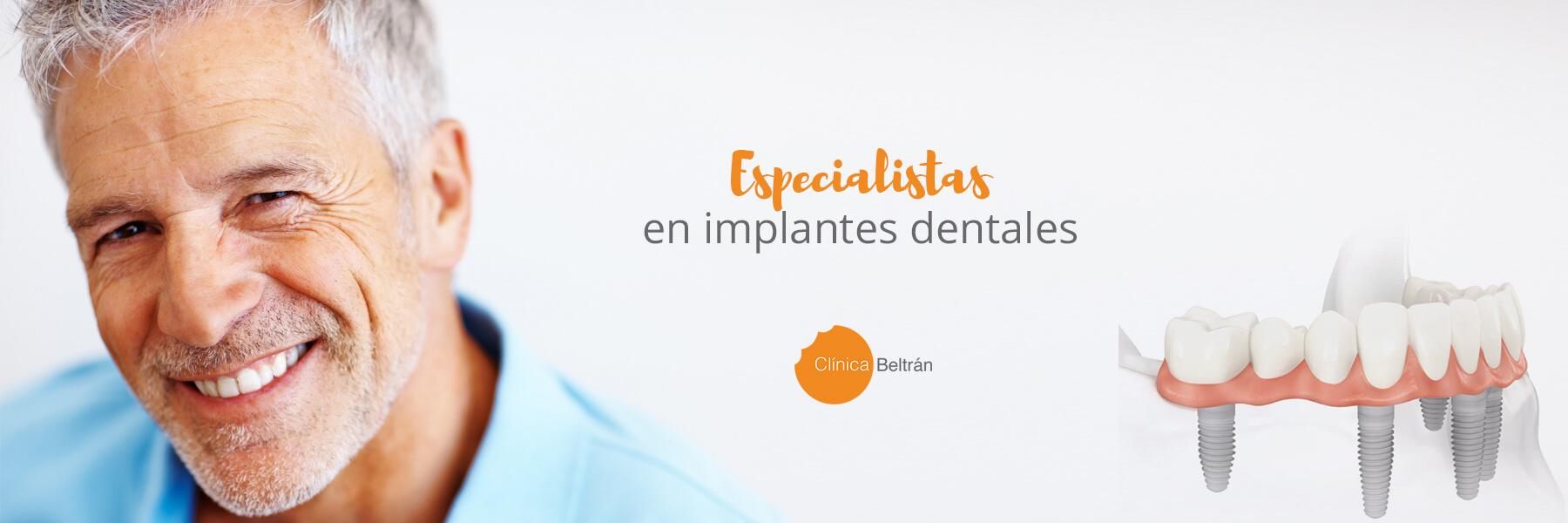 especialistas en implantes dentales