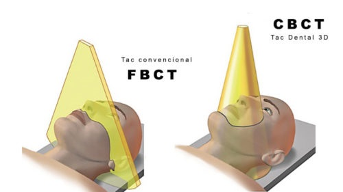 radiología dental 3D