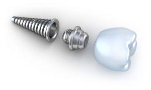 Nuevos Implantes
