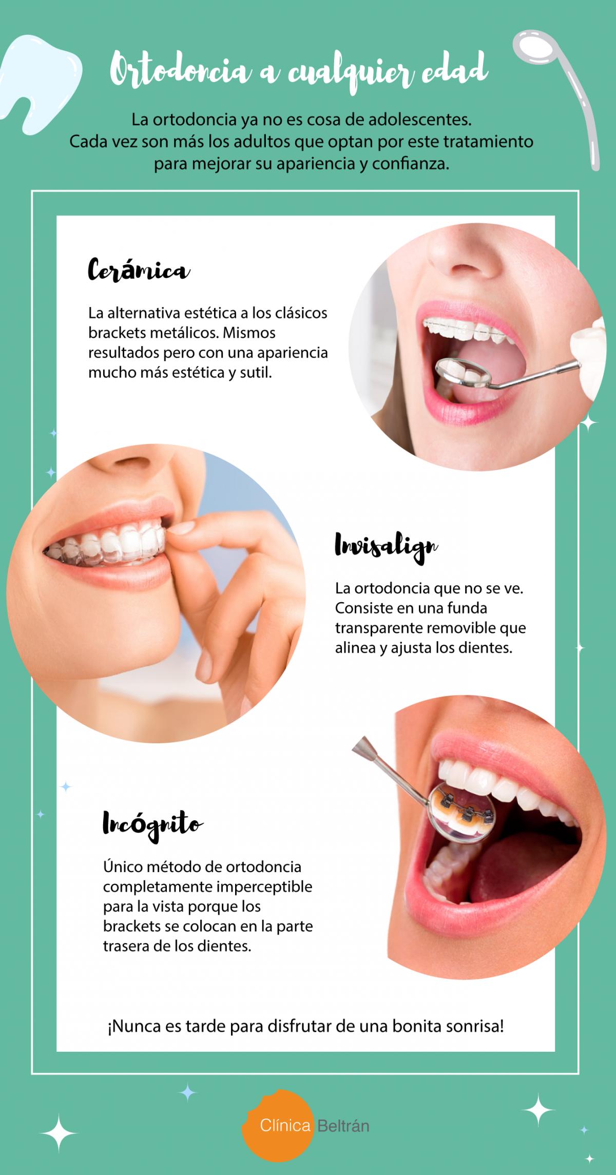 Ortodoncia estética, cada vez más usada por adultos