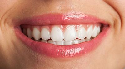 Blanqueamiento dental ZOOM! Revolución en tu sonrisa